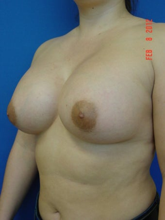 Breast Augmentation 509086