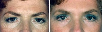 Blepharoplasty before 643184