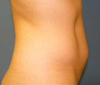 CoolSculpting before 621992