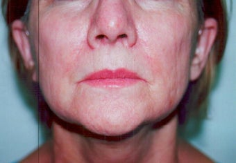 SmartXide CO2 Laser Resurfacing (DOT Therapy) 587714