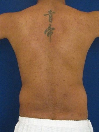 Vaser Hi Def Liposuction of the abdomen, chest, back, and flanks with fat injections to the pectoralis region before 422700