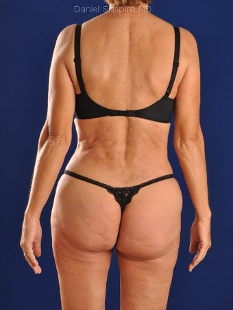 Vaser Hi Def Liposuction of abdomen, thighs, flanks and back with fat injections to buttocks after 422734