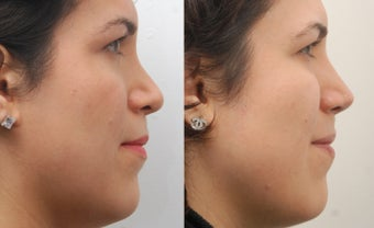 Revision Rhinoplasty before 468268