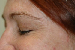Botox for Crow's Feet before 91056
