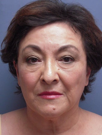 Neck Lift, Platysmaplasty before 634736