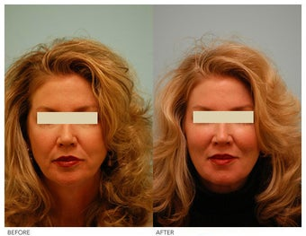 Injectable Fillers (Restylane/Perlane) before 136775