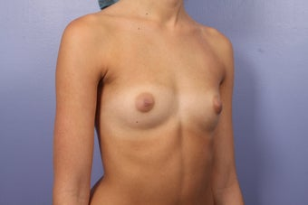 Breast Augmentation before 467316