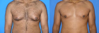 Male breast reduction (gynecomastia) before 177750