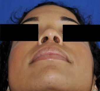 African American Rhinoplasty after 364921