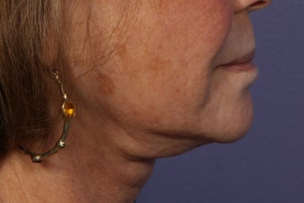 Botox to Neck (Platysmal Band Muscles) before 445465