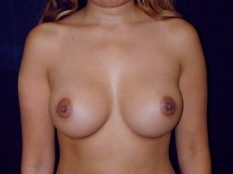 Breast augmentation after 293925