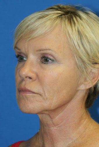 Facelift, Fat Transfer, and Skin Pinch 398946