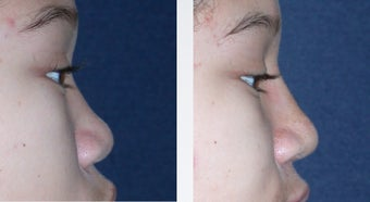 Rhinoplasty before 346240
