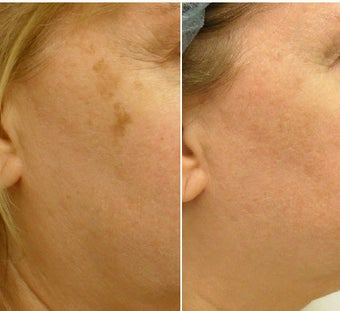 Fractionated resurfacing, QS Alexandrite laser, V-Beam laser before 247186