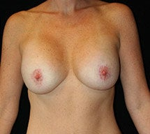 Breast Lift after 633754