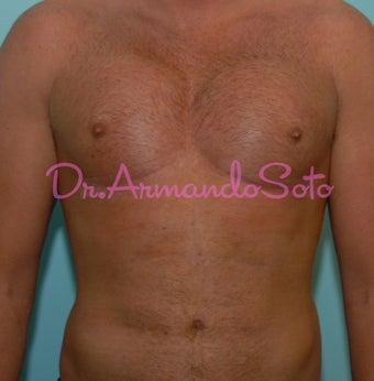Pectoral Implants for Men after 564468