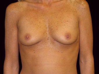 Breast augmentation before 293898