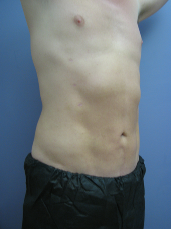 Tummy Liposuction after 229696