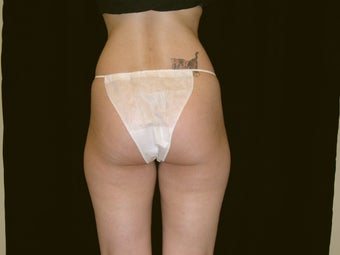 Liposuction before 236060