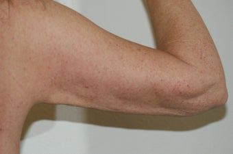 Arm lift (brachioplasty) 548317