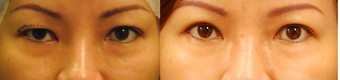 Asian Eyelid Surgery before 407928