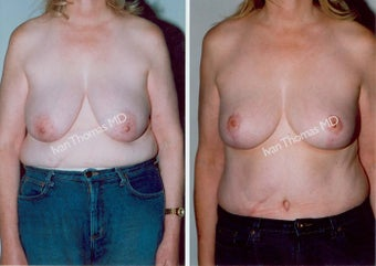 Mastopexy-Breast Lift before 243716