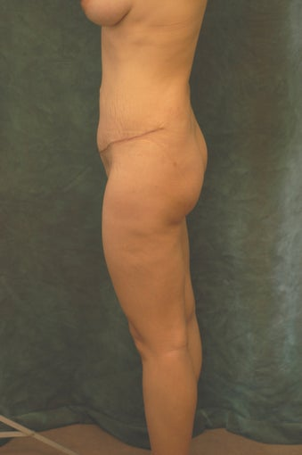Women's Buttocks Augmentation   before 518135
