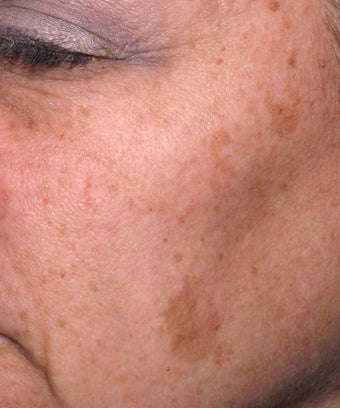 Melanage Peel to Treat Melasma and Hyperpigmentation before 302116