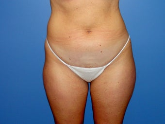 Tumescent liposuction before and after before 78800