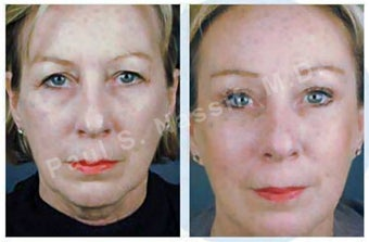 Complete Facial Rejuvenation before 138174
