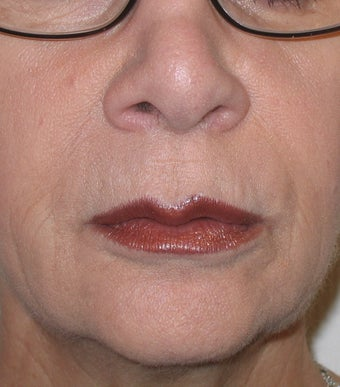 Restylane Treatment for Lips and Nasolabial Folds after 96419