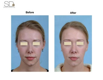 Revision Rhinoplasty before 100951