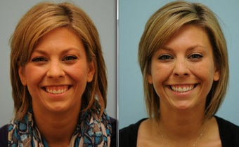 Gummy Smile Correction using Botox before 515452