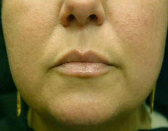 Juvederm Lip Augmentation before 624797