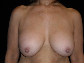 58 year old lady wanted implant removal and a breast lift before 631743