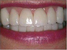 Smile Makeover Treatment after 430545