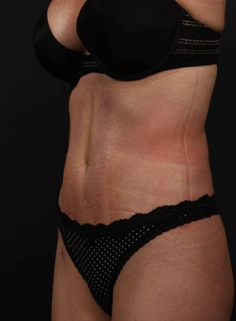 Abdominoplasty 398183