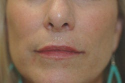 Restylane Treatment for lips after 91062