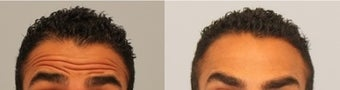 Male Botox patient  before 575326