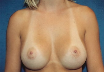 Breast Augmentation after 266923