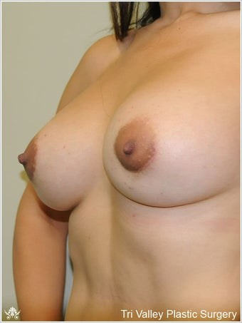 Breast Augmentation 420911