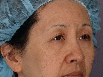 Eyelid Surgery before 324178