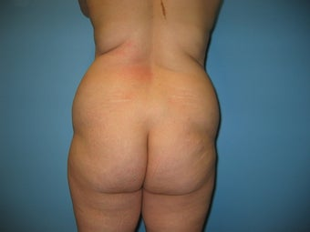 buttock augmentation (Brazilian buttock lift) before 284917