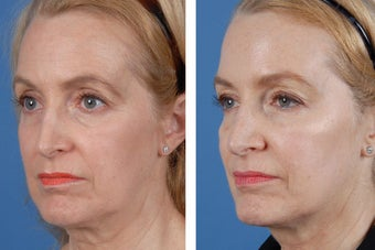 Restylane and Botox Cosmetic 356495