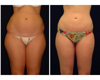 Liposuction before 286700