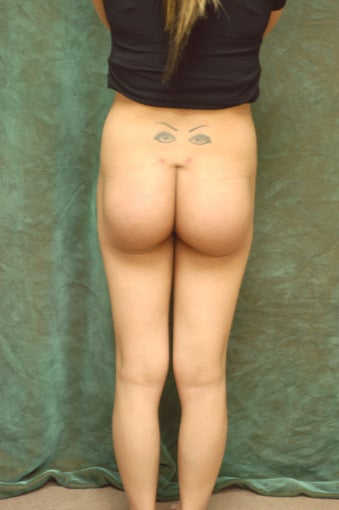 Women's Buttocks Augmentation   518141