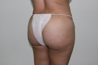 Brazilian Butt Lift 526150