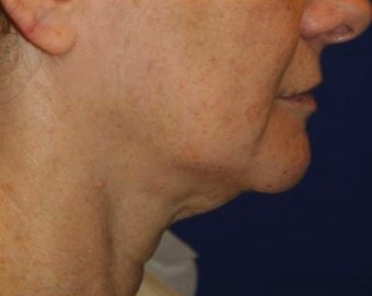 Neck lift surgery before 526353