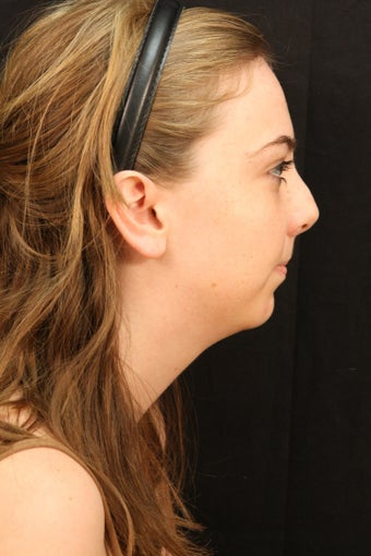 Rhinoplasty with chin augmentation before 248095
