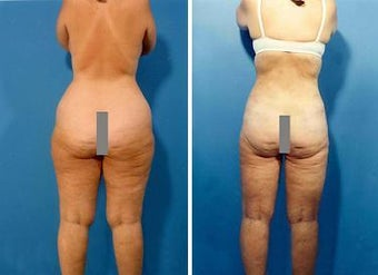 Liposuction before 636253